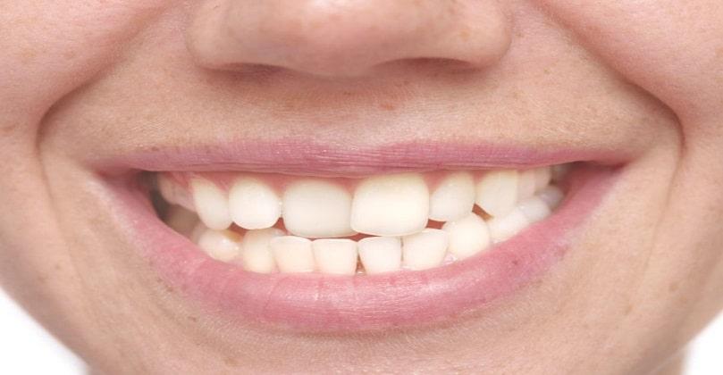 Oral Health Basics: Symptoms, Types, Causes & More